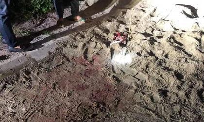 Kinh hoàng bé trai 7 tuổi bị đàn chó tấn công trọng thương