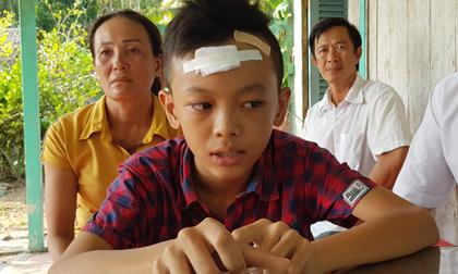 Học sinh lớp 7 ở Vĩnh Long bị bạn đánh đến ngất xỉu 2 lần trong trường