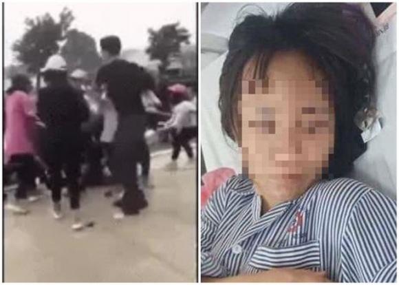 Nữ sinh Quảng Ninh tiết lộ lý do bị đánh hội đồng dẫn đến tụ máu ở đầu, phải nhập viện - Ảnh 1.