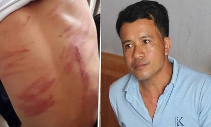 Vụ bé trai bị bố ruột bạo hành đến mức ngất xỉu, nhập viện: 'Ông ấy đánh cháu hơn 30 phút'