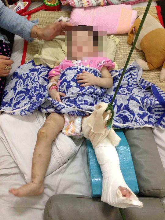 TP HCM: Mẹ nuôi bạo hành con gái 1 tuổi đến gãy chân, thương tích gần 60% - Ảnh 1.