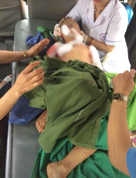 Bé trai 7 tuổi ở Thái Nguyên bị chó nhà nuôi cắn tử vong - Ảnh 1.