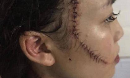 """Chị gái thiếu nữ xinh đẹp bị rạch mặt: """"Em tôi kêu có thai mà họ vẫn không tha"""""""