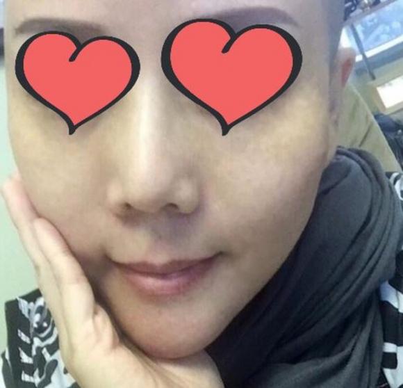 Phẫu thuật căng da mặt khiến cả khuôn mặt người phụ nữ bị bao phủ trong những vết phồng rộp kinh hoàng