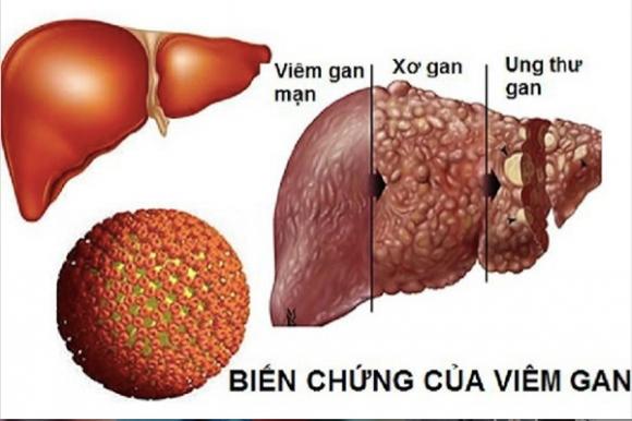 viem-gan-b-lay-lan-nhanh-hon-hiv-gap-100-lan-15-xahoi.com.vn-w600-h400
