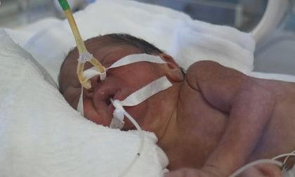 Hình ảnh bé Bình An, thiên thần của người mẹ trẻ mắc ung thư giai đoạn cuối
