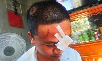 Huế: 3 mẹ con bị hàng xóm đuổi đánh, dùng dao chém trọng thương vì 'ngứa mắt' tấm lưới rào gà