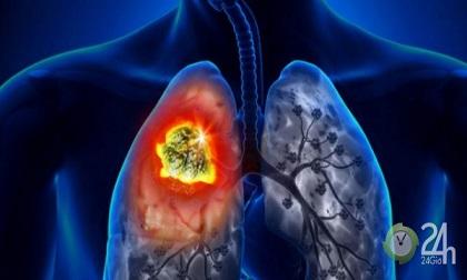 10 nghề nghiệp gây tổn thương phổi khủng khiếp, nguy cơ ung thư cận kề