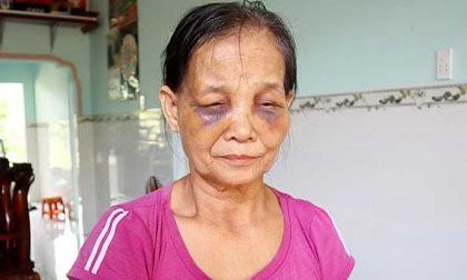 Vụ con dâu đánh mẹ chồng sưng tím mặt: Con dâu ân hận xin lỗi nhưng mẹ chồng chưa chấp nhận cho về nhà