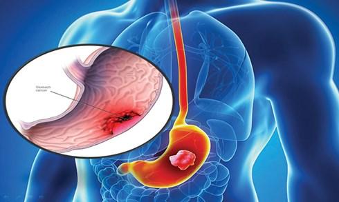 Ung thư dạ dày do thói quen ăn mặn, lười khám bệnh - 1