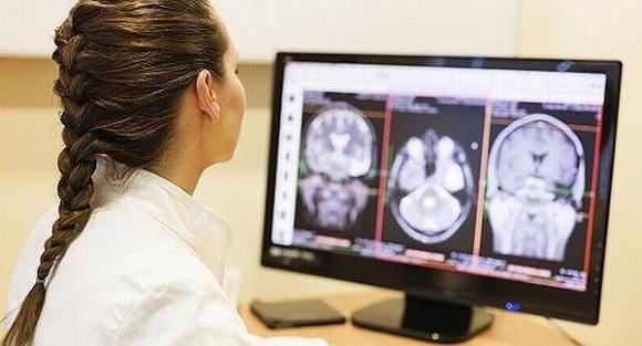 Bị đau đầu kiểu này, có thể mắc u não hoặc nhiều bệnh cực kỳ nguy hiểm - 1