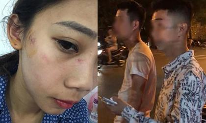 Hà Nội: 2 cô gái trẻ bị nhóm thanh niên trêu ghẹo, hành hung phải nhập viện