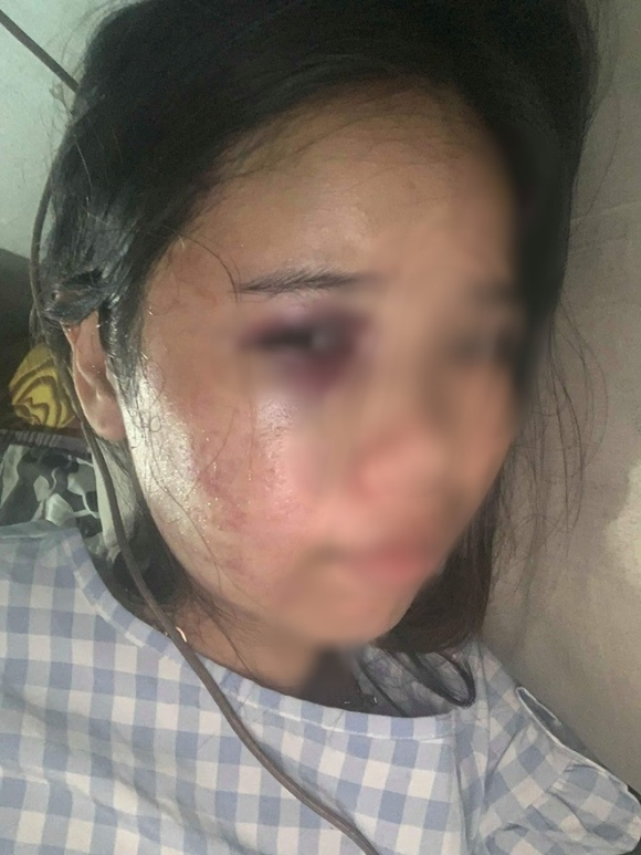 Xót xa những người vợ bầu vượt mặt vẫn đau đớn chịu nhiều trận bạo hành của chồng vũ phu - 2