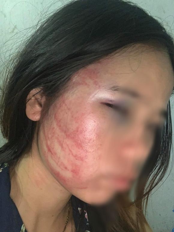 Xót xa những người vợ bầu vượt mặt vẫn đau đớn chịu nhiều trận bạo hành của chồng vũ phu - 3