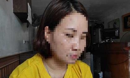 Mẹ bé trai 12 tuổi nghi bị bố ruột, mẹ kế bạo hành: 'Thằng bé khóc lóc cầu xin tôi cứu nó nếu không sẽ tự tử'