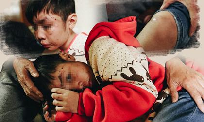 Nghẹn đắng những đứa trẻ bị bố mẹ ruột, mẹ kế bạo hành dã man gây phẫn nộ dư luận