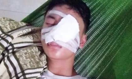 Nam định: Nam sinh lớp 10 bị nát mặt vì chó lạ tấn công