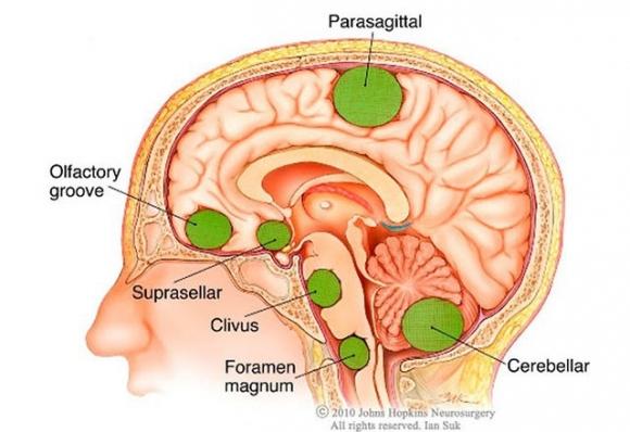 Những dấu hiệu u não hay gặp, điều thứ 3 nhiều người mắc mà không biết - 1