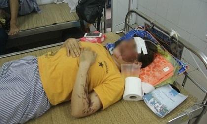 Nữ nhân viên phụ bếp bị kẻ lạ tạt axit vào mặt: 'Lúc đó tôi quá bất ngờ, chỉ biết ôm mặt chạy ra chậu nước'