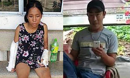 Gã chồng đánh vợ bầu 7 tháng đến gãy tay chân bị tạm giam 3 tháng