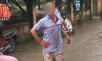Thảm sát kinh hoàng tại Hà Nội, cả nhà 5 người bị chém thương vong