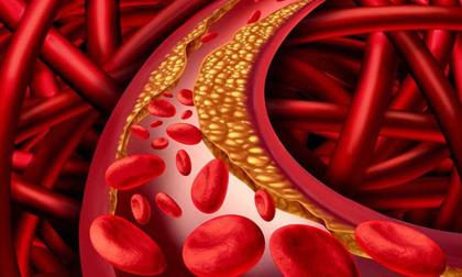 Mỡ máu cao là 'con đường chết chóc': Cảnh báo nguyên nhân gây bệnh vô cùng 'quen mặt'