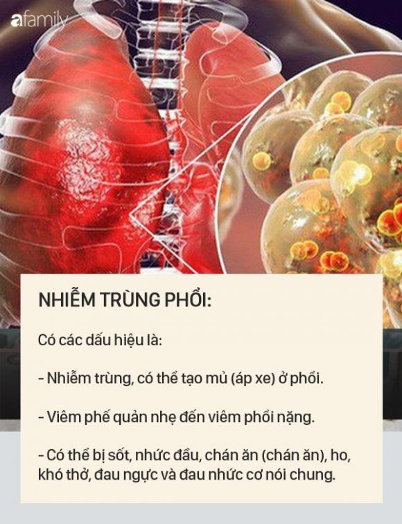 Dấu hiệu bệnh whitmore - căn bệnh do vi khuẩn ăn mòn cơ thể con người, có thể gây tử vong trong vài ngày - 2