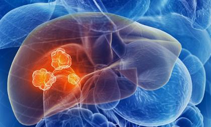 Chỉ tận mặt 4 thực phẩm chứa chất độc gây ung thư gan mà người Việt vẫn thường xuyên ăn mỗi ngày