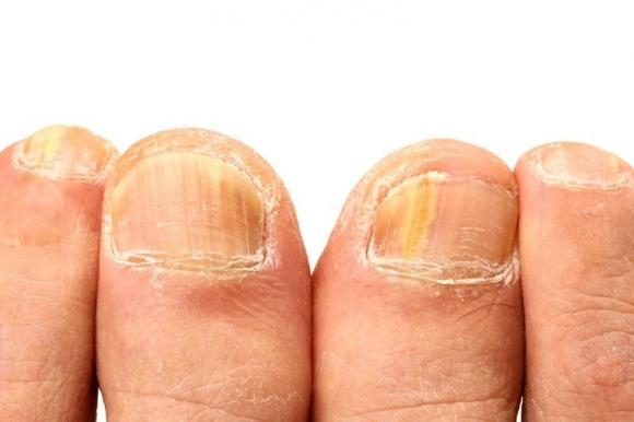 Móng tay vàng là dấu hiệu cảnh báo những vấn đề sức khỏe nghiêm trọng này - 1