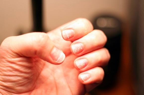 Móng tay vàng là dấu hiệu cảnh báo những vấn đề sức khỏe nghiêm trọng này - 2