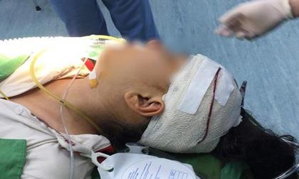 Học sinh lớp 5 nhập viện với chiếc kéo đâm thẳng vào đầu