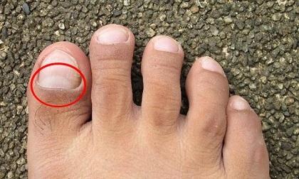 Thấy bàn chân có 'điềm báo' này, hãy cảnh giác vì thận đang gửi lời báo động nhiễm độc nặng