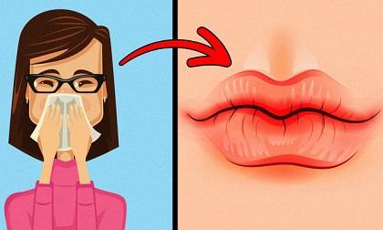 Thấy môi có dấu hiệu này, hãy nhanh chóng đi gặp bác sĩ ngay kẻo căn bệnh nguy hiểm đang 'gõ cửa'