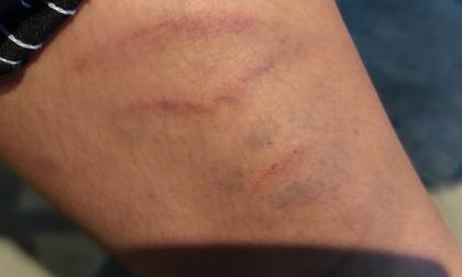 Hà Nội: Nghi án bé trai bị bố ruột dùng dây điện bạo hành, đánh bầm tím khắp người vì viết chữ xấu