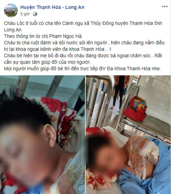 Xác minh thông tin bé trai ở Long An bị cha đẻ bạo hành, đổ nước sôi khiến bỏng nặng phải nhập viện