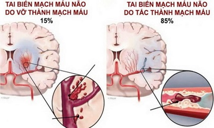 Tai biến mạch máu não: Cấp cứu thế nào để tránh tử vong?