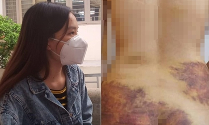 Vụ nghi chồng bạo hành, ép quan hệ ở Tây Ninh: Vợ yêu cầu xử lý hình sự