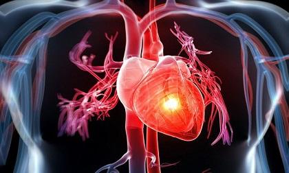 Top 5 loại thực phẩm tốt nhất cho sức khỏe tim mạch, càng ăn càng khỏe mạnh
