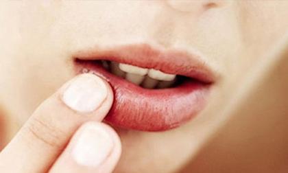 Bong tróc môi có thể là dấu hiệu cảnh báo những vấn đề sức khỏe nghiêm trọng hơn bạn tưởng
