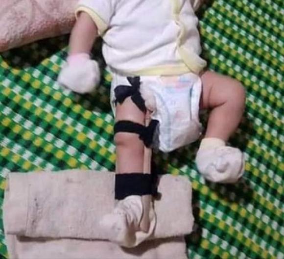 Vụ cha đánh gãy chân con 2 tháng tuổi: Bịa đặt để kêu gọi cộng đồng mạng hỗ trợ