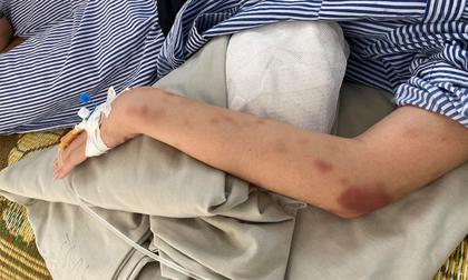 Công an lên tiếng vụ cô gái bị thanh niên xăm trổ hành hung suốt 2 giờ trong nhà ở Yên Bái