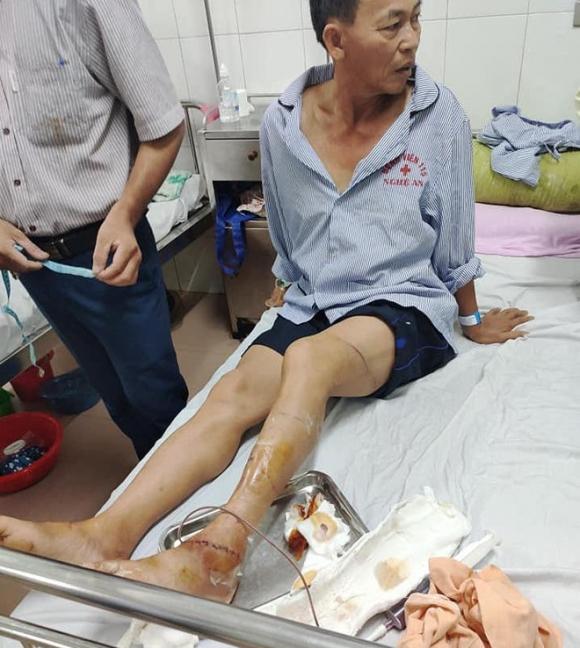Bố cùng 2 con trai chém đứt gân, mẻ chân công an rồi cố thủ trong nhà - Ảnh 2.