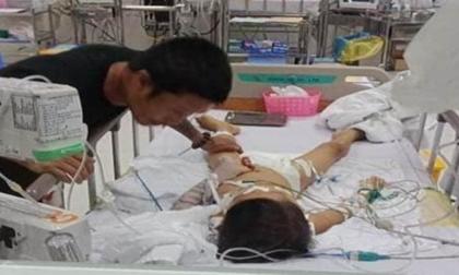 Bé 7 tuổi hôn mê sâu sau mổ lấy đinh nẹp xương đã mất