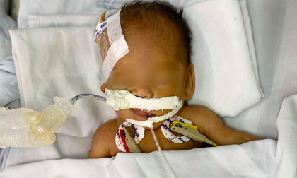 Thương tâm: Bé trai sơ sinh nặng chỉ 1,4kg bị bỏ rơi trước cổng chùa, mắt lồi, người đầy vết tiêm chích