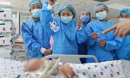 Hai bé song sinh dính liền sau phẫu thuật: Trúc Nhi vẫn phải thở máy