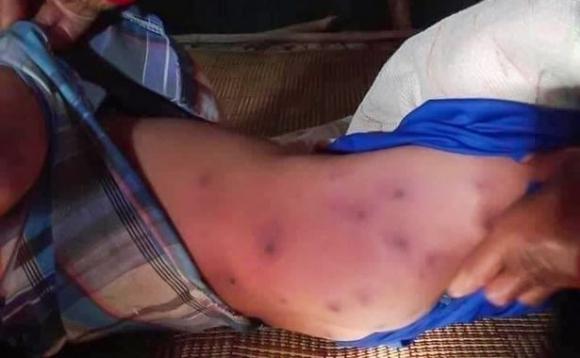 Bé trai 6 tuổi tử vong sau khi bị hàng trăm con ong bắp cày tấn công trong khi tỉa cây cùng bà ngoại - Ảnh 1.