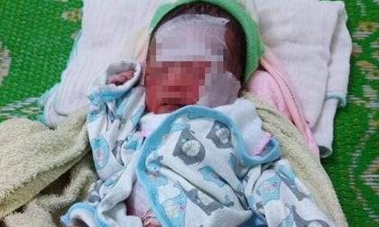 Bé gái sơ sinh bị bỏ rơi cả ngày dưới nắng nóng trong rẫy bắp ở Đắk Lắk