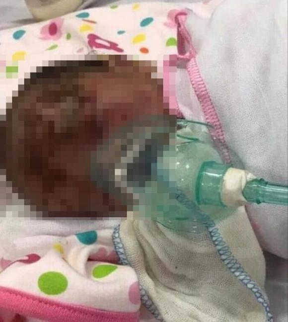 Phát hiện một bé trai khoảng 3 ngày tuổi bị bỏ rơi ven đường, trên mặt có nhiều vết xước Ảnh 1