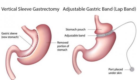 Giám đốc BV Việt Đức cảnh báo 25% người Việt đang bị thừa cân, béo phì: Nguy cơ cao mắc bệnh tim mạch và ung thư nếu không điều trị dứt điểm