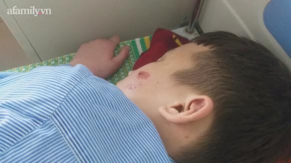Kinh hoàng lời kể nạn nhân 14 tuổi bị chủ quán bánh xèo 'tra tấn': Bị đánh đập nhiều lần bằng chày đập đá và cạo vảy cá khiến cơ thể thương tích nặng nề, tinh thần hoảng loạn